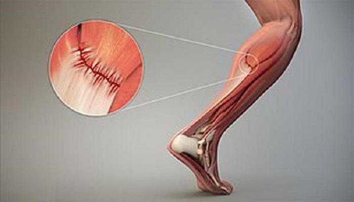 کشیدگی عضلات 2