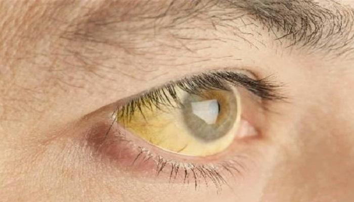 زردی چشم از علائم کبد چرب