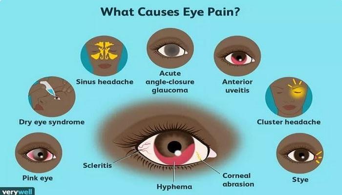 علل درد چشم