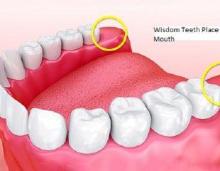 دندان عقل و محل آن در دهان