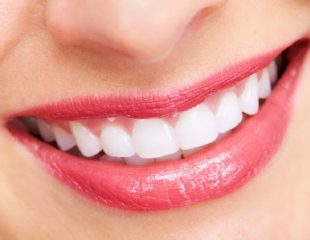 ترمیم زیبایی دندان