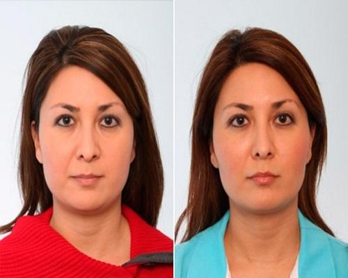 جراحی لاغری صورت