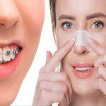 ارتودنسی و عمل بینی