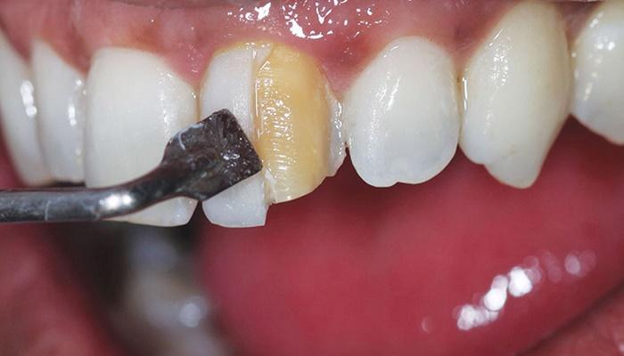 ترمیم-دندان-با-کامپوزیت