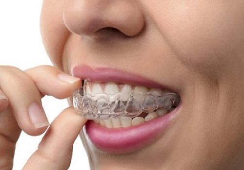 ارتودنسی بدون کشیدن دندان - بی سیم