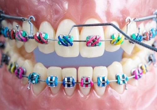 ارتودنسی-دندان-رنگی