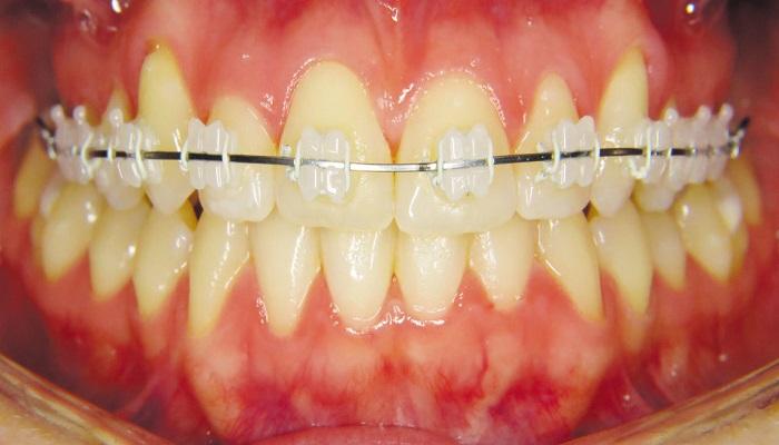 ارتودنسی-دندان-سرامیکی