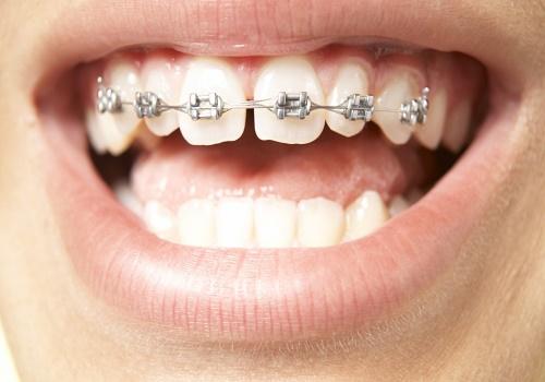 ارتودنسی دندان های بالا