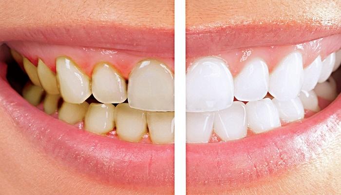 لمینت-دندان-بدون-تراش