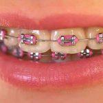 ارتودنسی-دندان-جلو