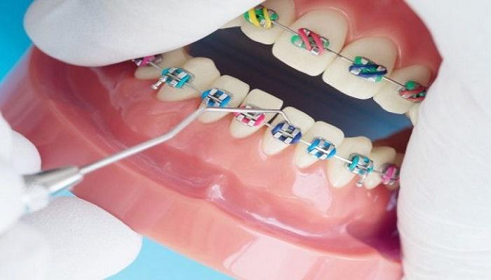 ارتودنسی دندان چه زمانی طول می کشد