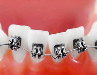 ارتودنسی-دندان-کج