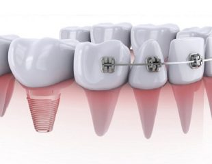 ارتودنسی دندان روکش دار