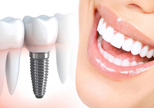 ایمپلنت دندان و مزایا ومعایب آن