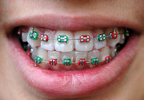 ارتودنسی دندان رنگی