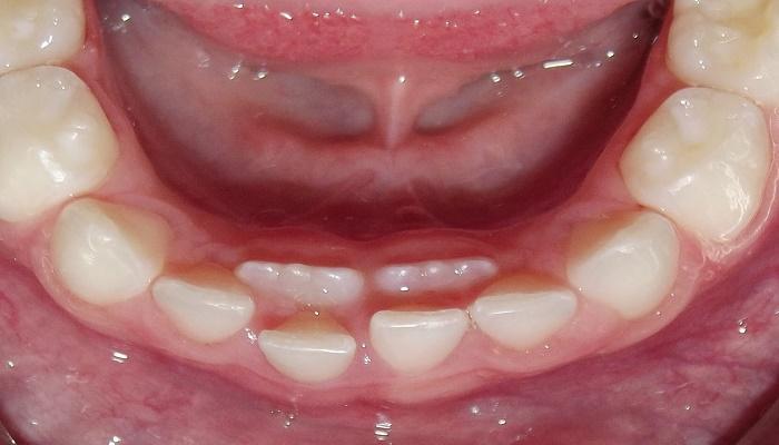 ارتودنسی-دندان-اضافی