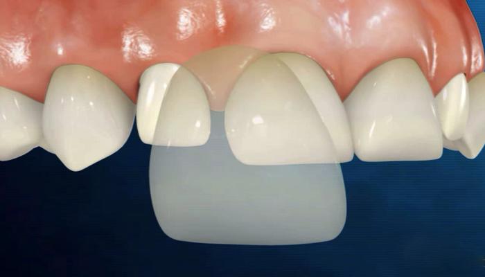 ونیر-دندان