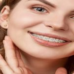 ارتودنسی دندان سرامیکی