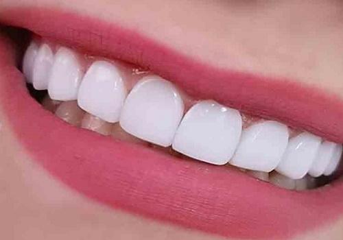 لمینت-دندان -و-قیمت-آن