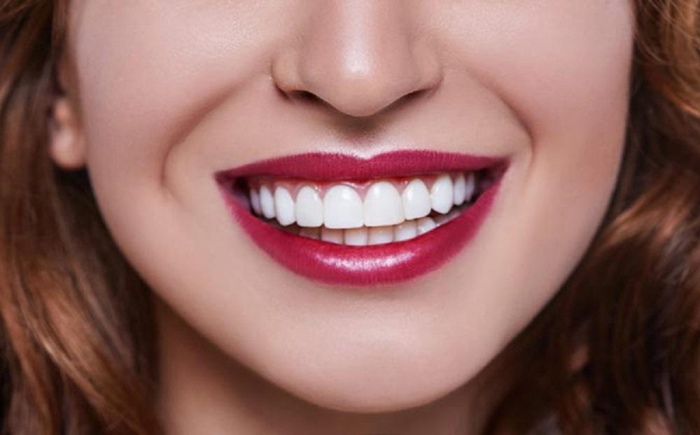 ونیر کامپوزیت دندان